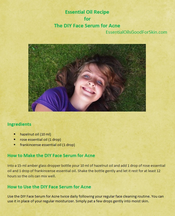 Essential Oil Recipe for The DiY Face Serum for Acne